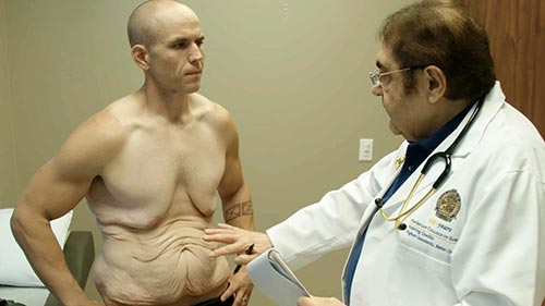 My Extreme Excess Skin 2